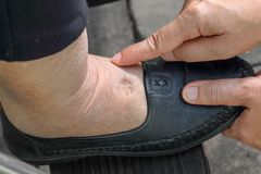 Free Swelling Of Ankles And Feet Test By Pushing Finger On Swollen Area Will Appear A Pit Royalty Free Stock Image - 142550396