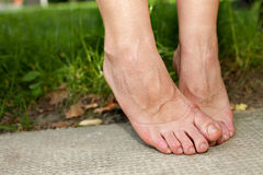 Swollen ankles and swollen feet. Womans swollen ankles and feet stock photography