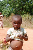 Swollen belly of a little African girl - Pomerini - Tanzania - A Royalty Free Stock Image