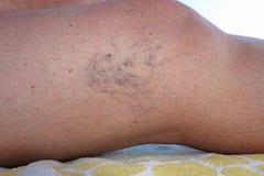 Swollen blood vessels on female mature legs. Mature female varicose veins legs close up stock images