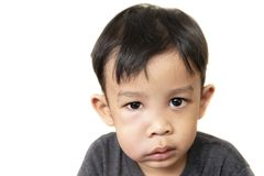 Swollen face of asian kid suffering from health problem and aching tooth. Showing dissatisfaction. dental concept royalty free stock images