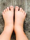 Swollen feet Stock Images
