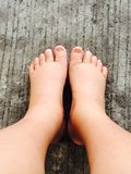 Swollen feet Royalty Free Stock Photos