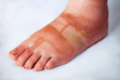 Swollen foot with burn blisters. Swollen and bruised foot with burn blisters royalty free stock photos