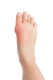 Swollen foot with gout inflammation. Swollen foot around the big toe area due to gout inflammation stock photography