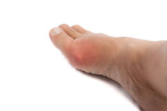 Swollen foot with gout inflammation. Swollen and painful foot due to gout inflammation stock photography
