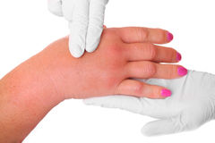 Swollen hand. A picture of a swollen hand due to a wasp sting being examined by a doctor over white background stock images