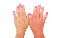 Swollen hand Royalty Free Stock Photo