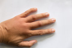 Swollen hand from wasp sting. Swollen hand from wasp insect sting stock photo