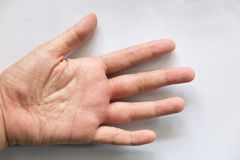 swollen hand from wasp sting Stock Photo