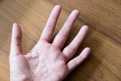 swollen hand from wasp sting Royalty Free Stock Image