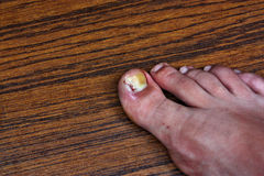 Swollen ingrown toe. Ingrown toenail disease blood wound infection bacteria  finger  skin scab pus  toe liquid whitlow felon treatment swelling on a brown table Royalty Free Stock Photo