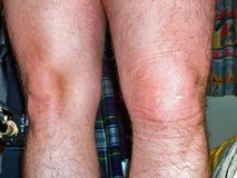 Swollen left knee akter ligament rupture ca 5 hours after the accident.  stock photo