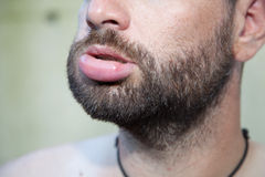 Swollen lip. Male lip swollen due to bee sting royalty free stock photography