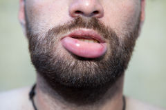 Swollen lip. Male lip swollen due to bee sting stock photo