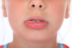 Swollen lip after wasp sting. Swollen lip of a child after a wasp sting stock images
