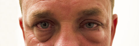 Swollen Red Allergie Eyes. Cropped photo of a mans eyes that are red, itchy, irritated and swollen stock photos