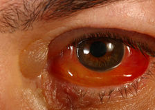 Swollen Red eye after Cryotheropy Royalty Free Stock Photography