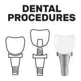Symbol för tandblekmedeltandläkare Tand- hälsovård och muntligt hygien vektor illustrationer