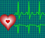 Symbole de coeur et de battement de coeur sur la surface r3fléchissante Photographie stock libre de droits
