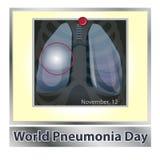 Symbollungsjukdom _ Respiratoriskt system Respiratorisk sjukdom - cancerastma, tuberkulos, lunginflammation Världen royaltyfri illustrationer