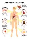 Symptômes de l'anémie illustration stock