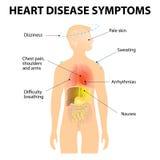 Symptômes de maladie cardiaque illustration de vecteur