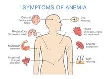 Symptome allgemein für viele Arten Anämie lizenzfreie abbildung