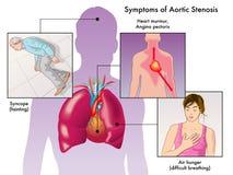 Symptoms of aortic stenosis. Medical illustration of the symptoms of aortic stenosis Royalty Free Stock Photo