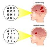 Symptoms of dyslexia Stock Photos
