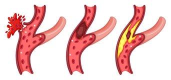 Symptoms in human vein Stock Image