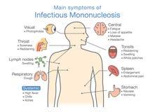 Symptoms of Infectious Mononucleosis disease. Stock Image