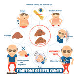 Symptoms of liver cancer. In circles,info graphic illustration vector illustration
