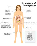 Symptoms of menopause royalty free illustration