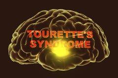 Syndrom för Tourette ` s, medicinskt begrepp stock illustrationer