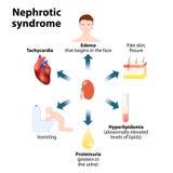 Syndrome nephrotique Images libres de droits