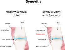 Synovitis Royalty Free Stock Photo