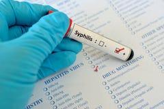 Syphilis positive Royalty Free Stock Image