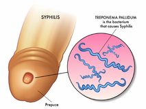 Syphilisillustration Stockbild