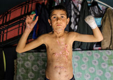 Syrië: De slachtoffers van ISIS vallen aan stock foto