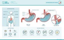 Syrligt infographic lågvatten och halsbränna stock illustrationer