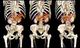 Système cardio-vasculaire sur la tomodensitométrie image stock