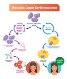 Systemic lupus erythematosus labeled diagram with normal and sick patient. Scheme of apoptotic bodies formation, altered clearance, bodies degradation and stock illustration