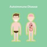 Systemillustration för Autoimmune sjukdom med för mankropp för tecknad film mänsklig effekt för skydd Fotografering för Bildbyråer