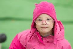 Szczęśliwa dziewczyna z puszka syndromem obraz royalty free