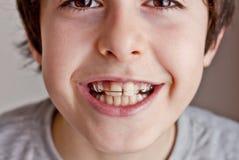 Szczęśliwy nastoletni z brasami Zdjęcia Stock