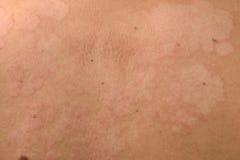 Szczegół skóra fotografia stock