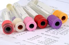Szklane tubki dla badań krwi zdjęcia stock
