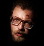szklanego mężczyzna małe rany Zdjęcia Royalty Free