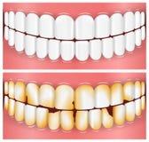 Tänder mun, tandläkekonst Arkivfoto